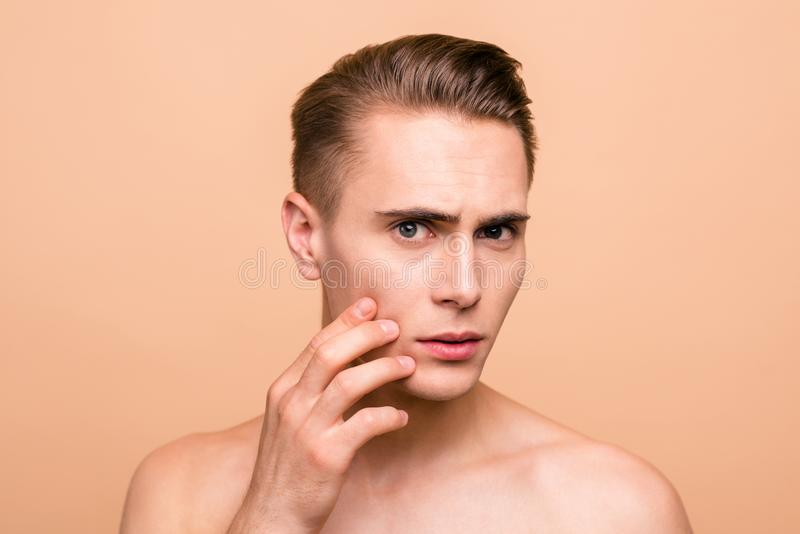 Portrait of frustrated, naked brown-haired man looking for acne stock image