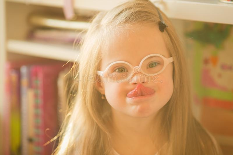 Portrait of a girl with Down syndrome stock photo