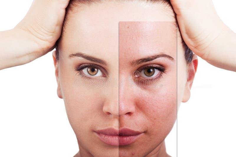 Portrait impeccable de femme avant et après la correction faciale image libre de droits