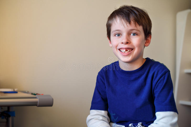 Portrait of little boy who lost his milk tooth royalty free stock photo