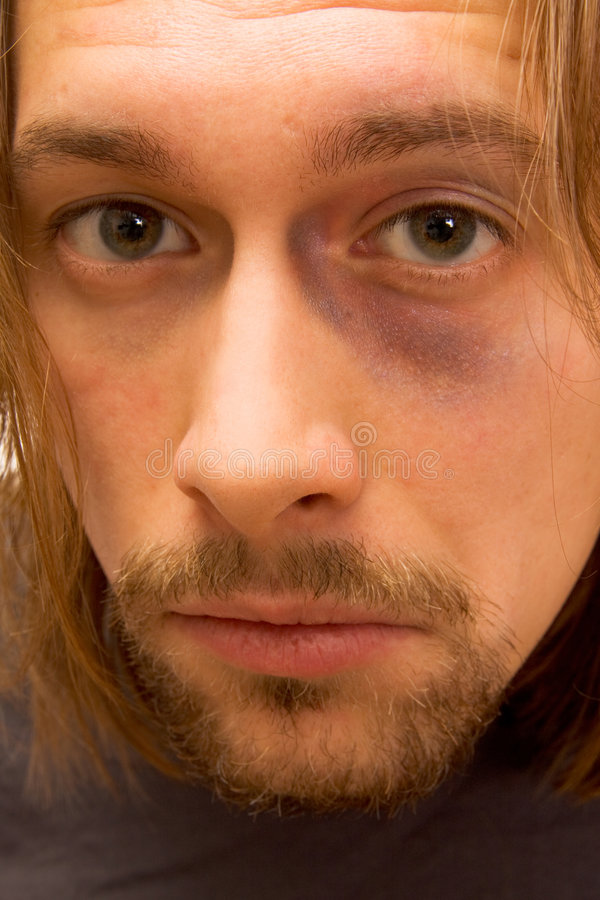 Download Portrait Of Man With Black Eye Stock Photo - Image of young, handsome: 3597160