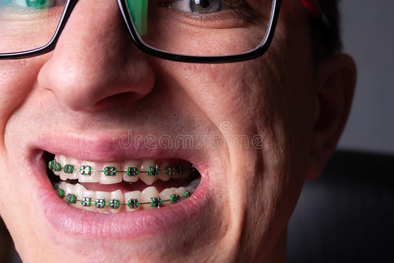 105 Bands Braces Photos Free Royalty Free Stock Photos From