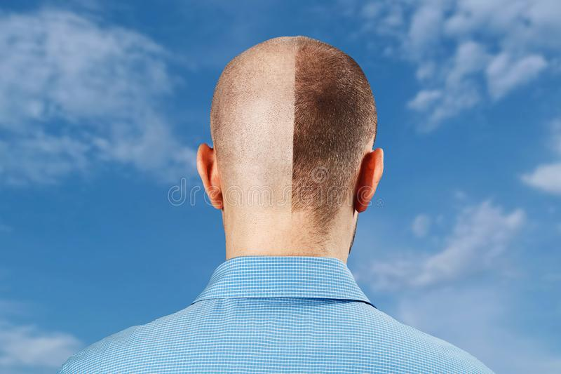 Portrait Man before and after hair loss, transplant on blue sky background. Split personality, Back view.  stock photos