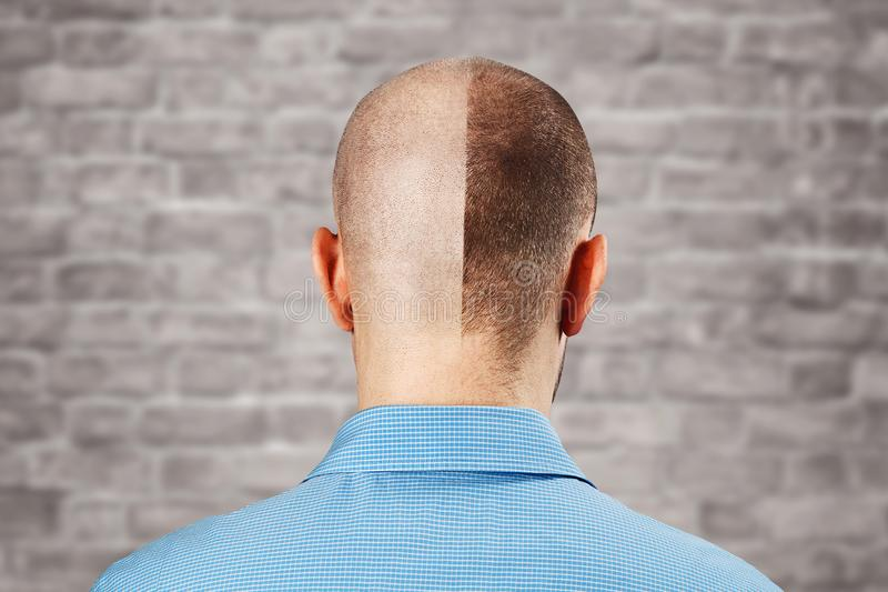 Portrait Man before and after hair loss, transplant on brick wall white background. Split personality, Back view.  royalty free stock photos