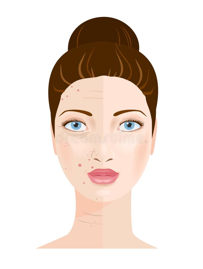 Free Portrait Of Woman. Skin Care. Vector Royalty Free Stock Photo - 51535245