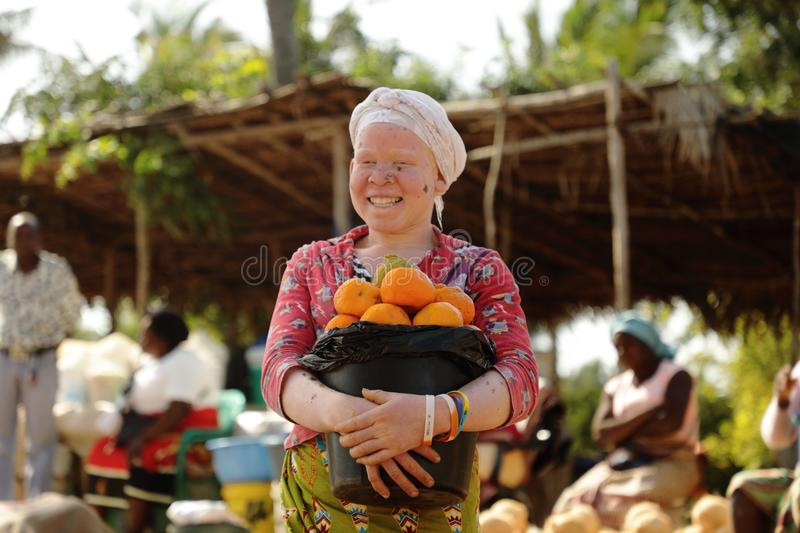 Street portrait of black albino woman. Mozambique. royalty free stock photography