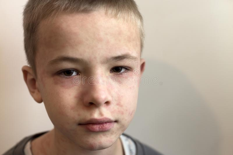 Portrait of sick sad boy child suffering from measles or chicken pox with bumps all over face. Contagious child diseases and. Treatment stock photography