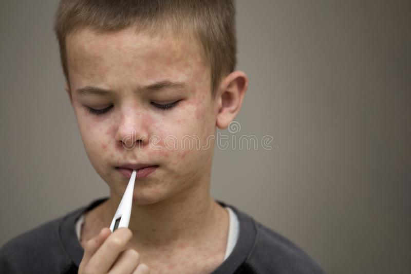 Portrait of sick sad boy child with thermometer having fever suffering from measles or chicken pox with bumps all over face. royalty free stock images