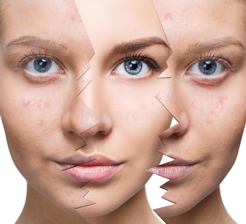 Portrait of woman before and after acne. Young woman recovery over split old skin. Before and after acne stock image