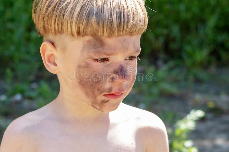 Portrait of a 5 year old boy with a hurt and dirty face. The boy is upset by the injustice. stock photo
