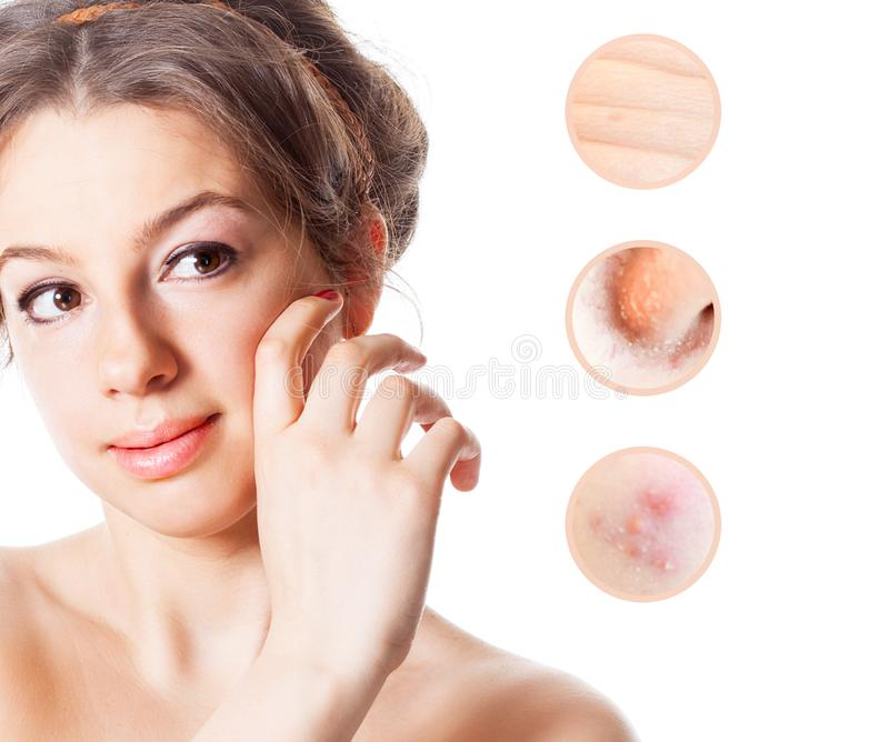 Portrait of young beautiful woman with problem and clean skin royalty free stock photos