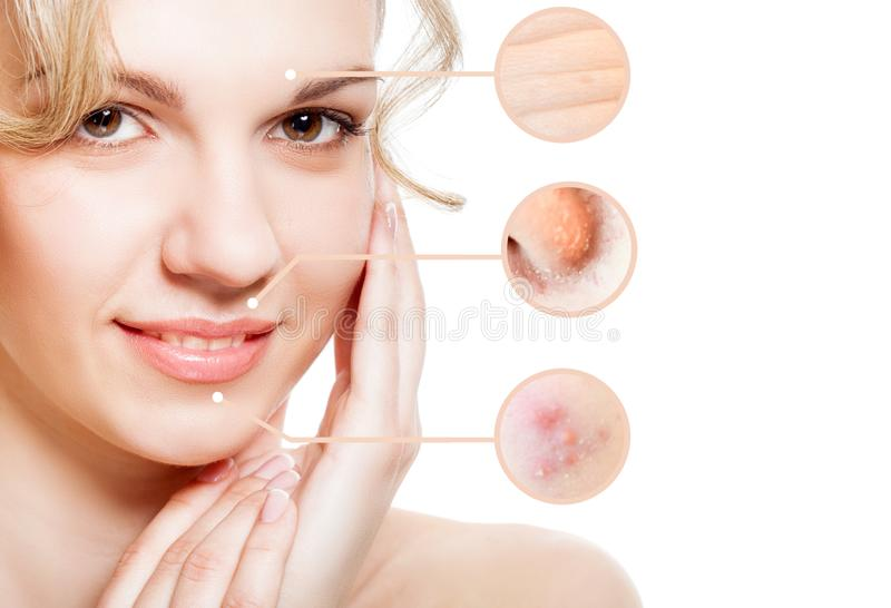Portrait of young beautiful woman with problem and clean skin stock photography