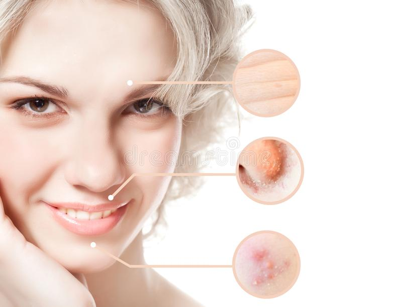Portrait of young beautiful woman with problem and clean skin royalty free stock image
