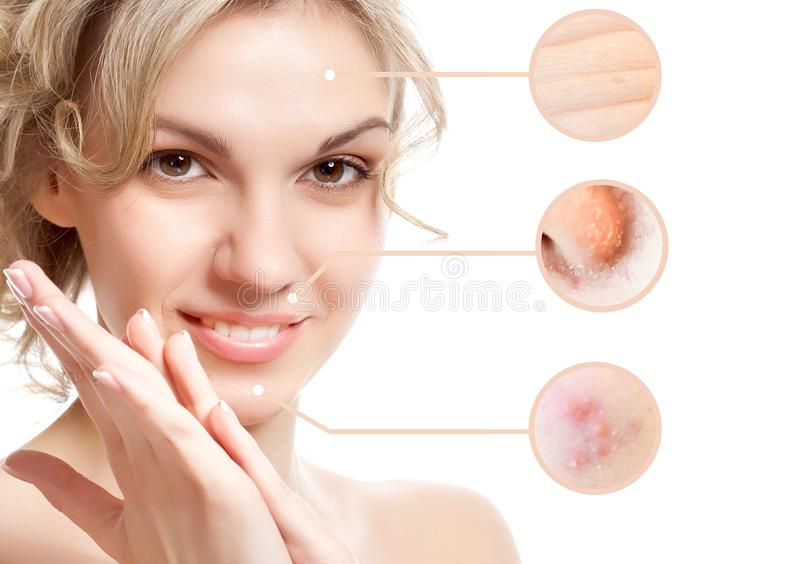 Portrait of young beautiful woman with problem and clean skin royalty free stock images