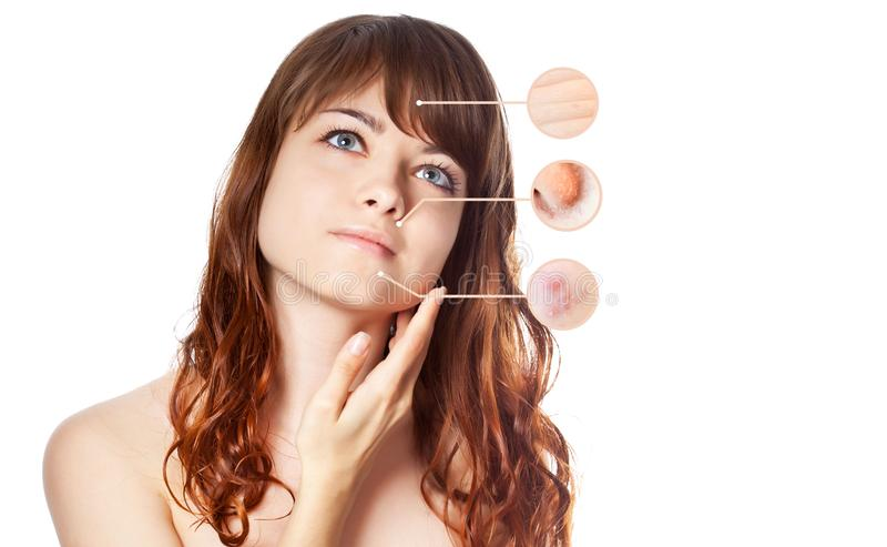 Portrait of young beautiful woman with problem and clean skin stock images
