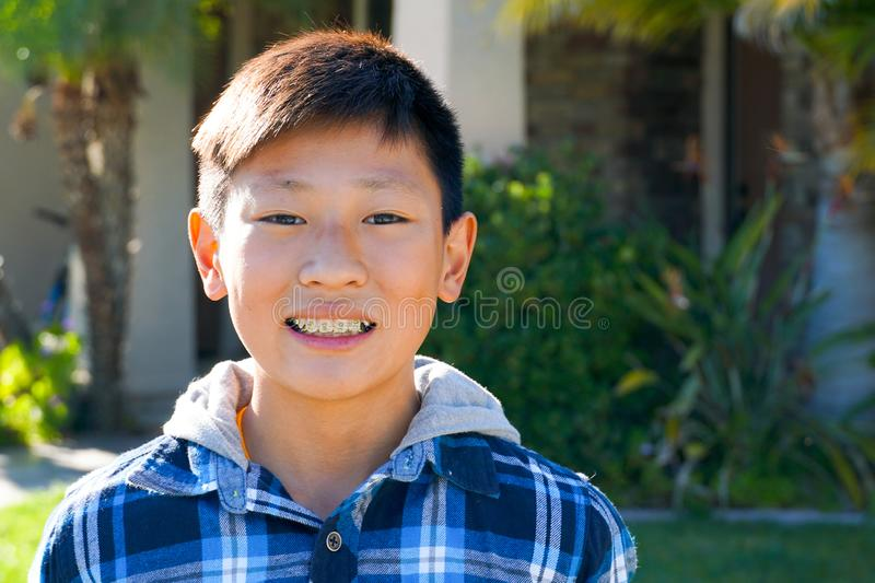 Portrait of young kid Asian boy with tooth braces. royalty free stock images