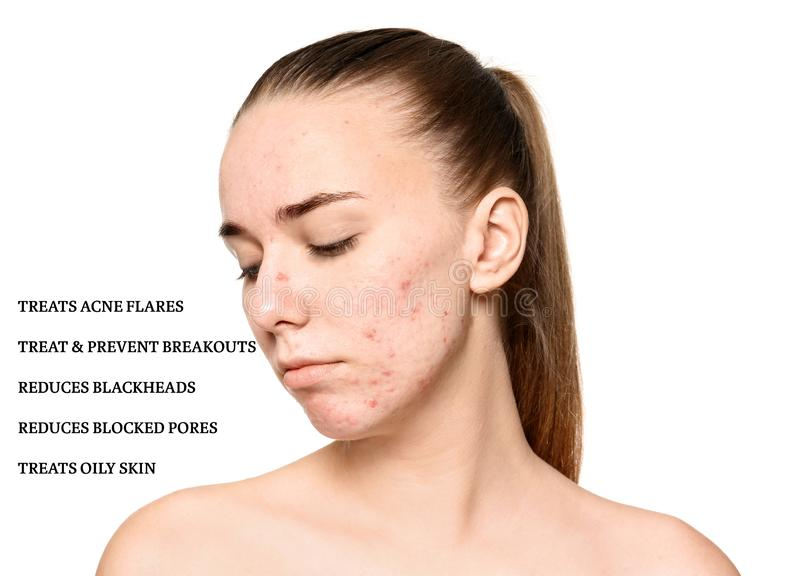 Portrait of young woman with problem skin and list stock images