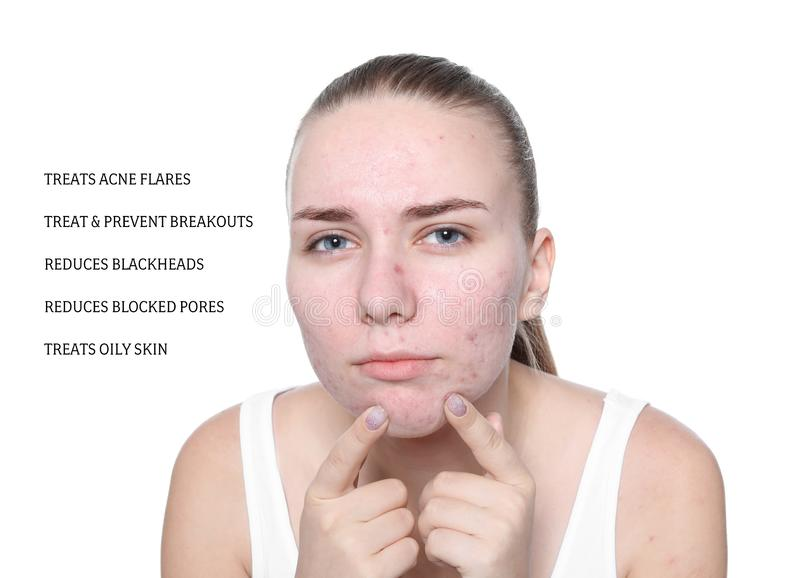 Portrait of young woman with problem skin stock photography