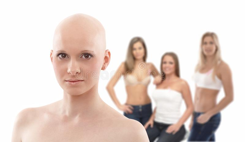 Portret łysa kobieta - nowotwór piersi Awereness fotografia stock