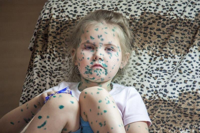 Portret śliczny małej dziewczynki 3-4-5 lat z smutnymi oczami z chickenpox, krosty namaszczał z zielonymi leczniczymi przygotowan zdjęcia royalty free