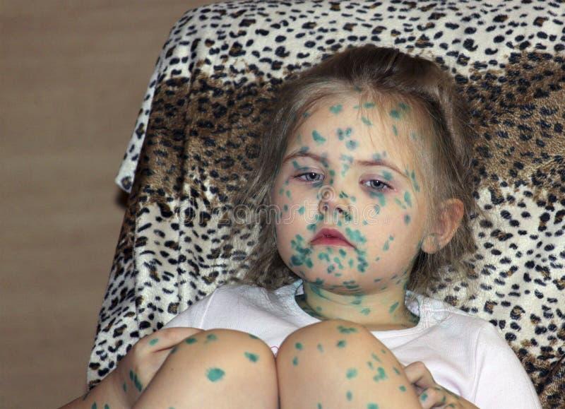 Portret śliczny małej dziewczynki 3-4-5 lat z smutnymi oczami z chickenpox, krosty namaszczał z zielonymi leczniczymi przygotowan zdjęcia stock