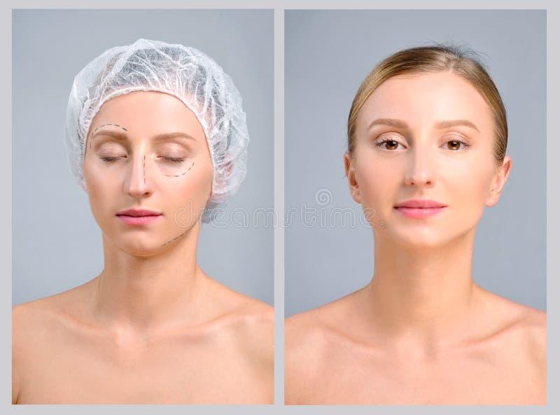 Portret żeńska twarz przed i po chirurgią plastyczną, fotografia stock