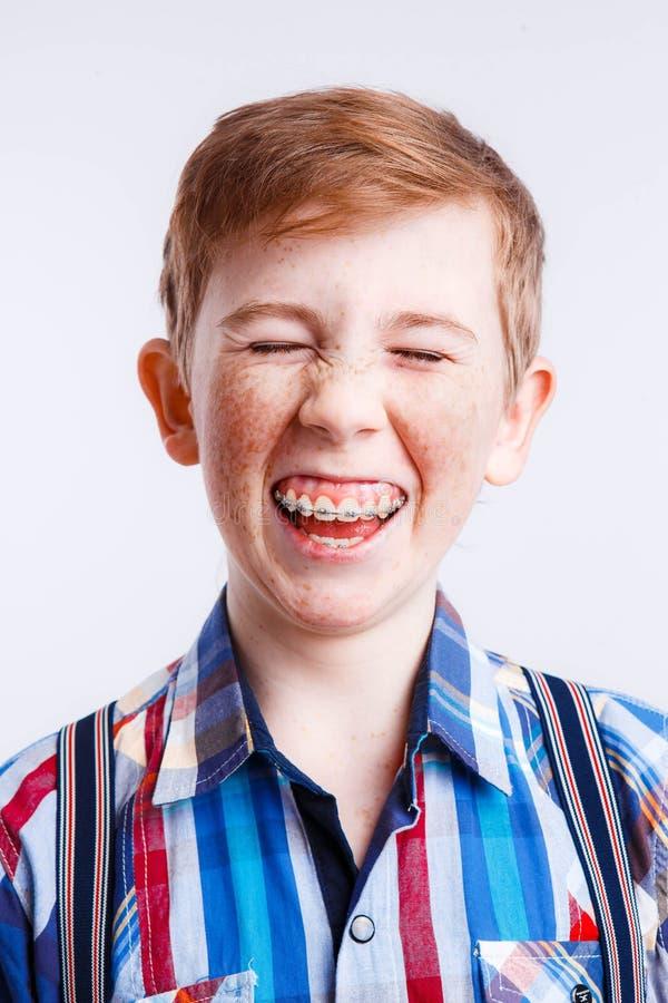Portret van een glimlachende roodharige jongen met sproeten en steunen in een geruit overhemd op een witte achtergrond, stock afbeelding