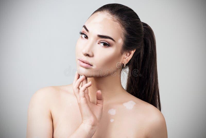 Portret van mooie vrouw met vitiligo royalty-vrije stock afbeeldingen