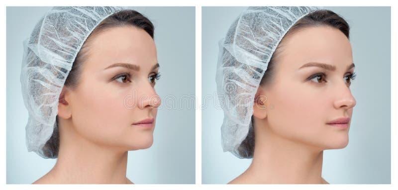 Portret van vrouwelijk gezicht, before and after rhinoplasty royalty-vrije stock afbeeldingen