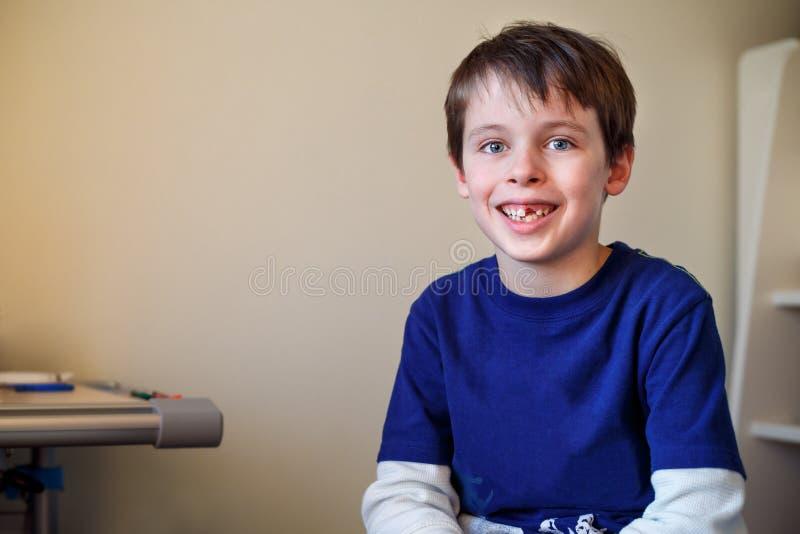 Portret van weinig jongen die zijn melktand verloor royalty-vrije stock foto