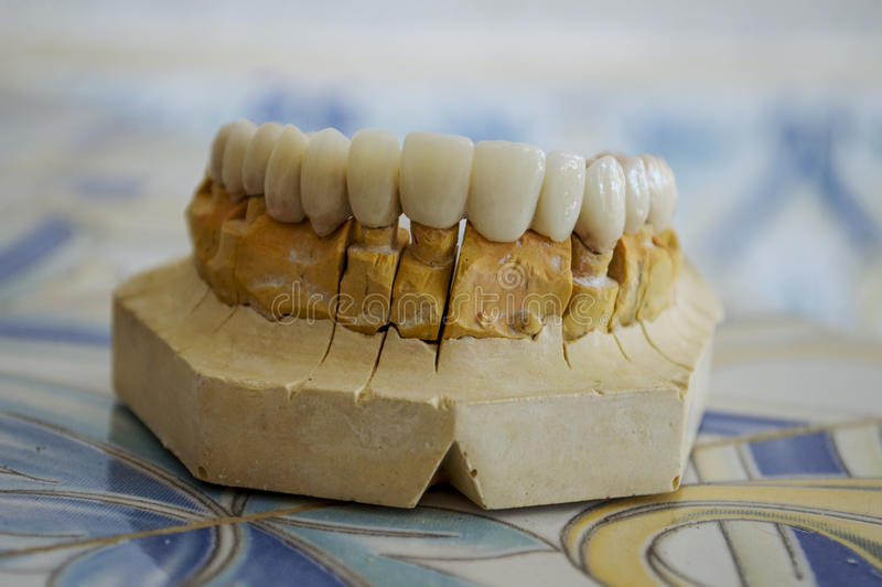 Porzellan-Zähne lizenzfreies stockbild