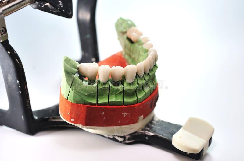 Porzellanzähne auf keramischem Baumuster der Prothese stockbilder