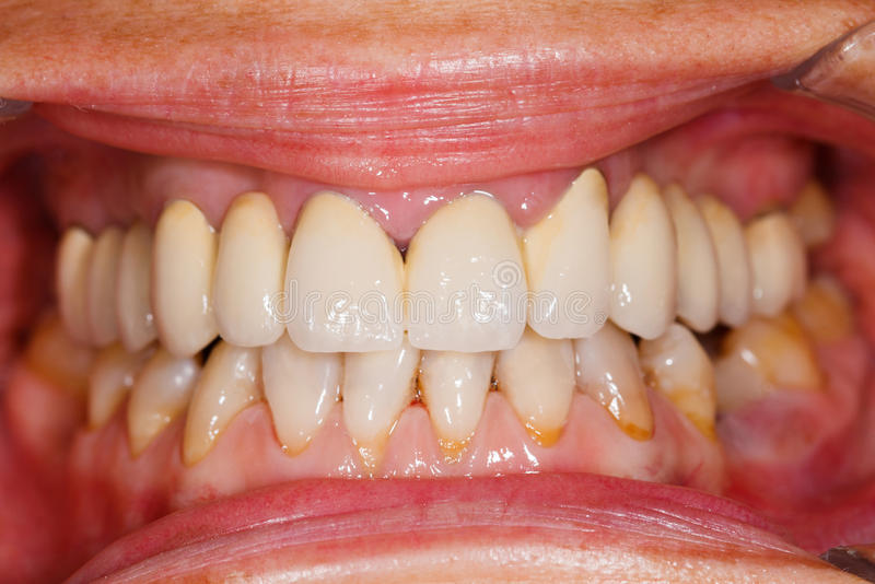 Porzellanzähne im menschlichen Mund lizenzfreie stockfotos