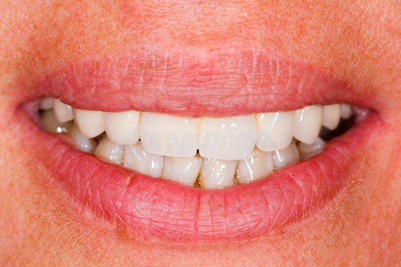 Porzellanzähne im menschlichen Mund stockfoto