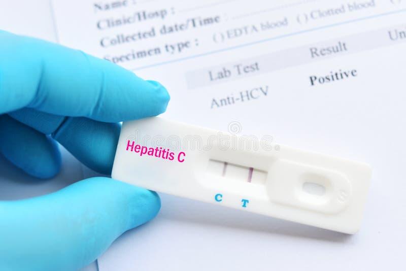 Positief de testresultaat van het hepatitisc virus royalty-vrije stock afbeeldingen
