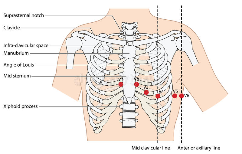 Position of ekg leads. Placement of ecg ekg leads showing the ribs and sternum, the mid clavicular line and the anterior axillary line. Created in Adobe vector illustration