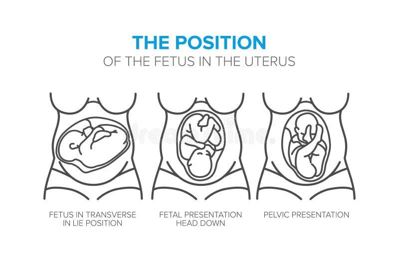 Positionen av fostret i skötet vektor illustrationer