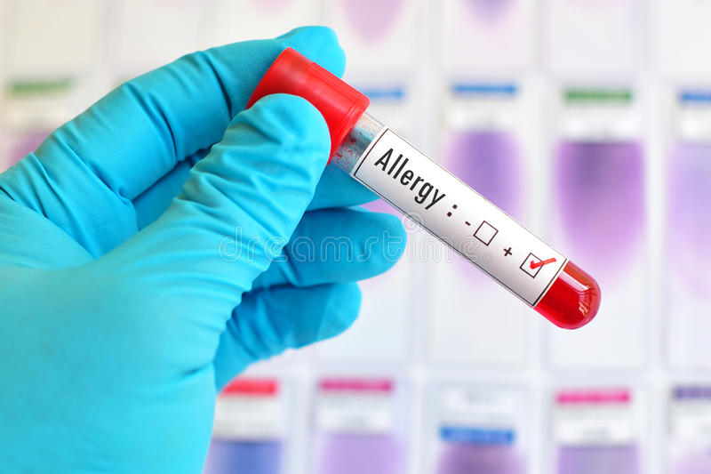 Positivo di allergia immagine stock