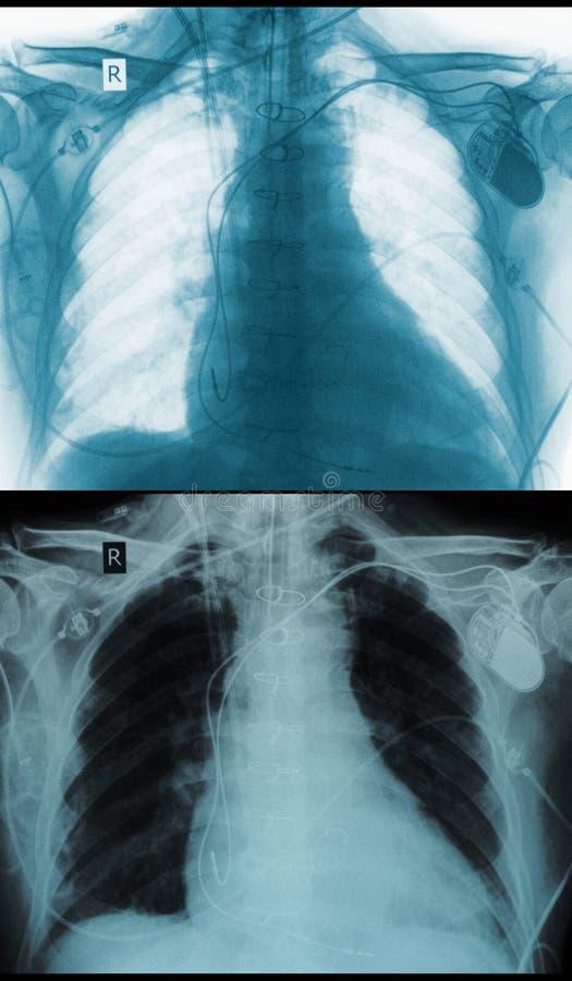 Positivo negativo de la imagen de la radiografía del pecho ilustración del vector