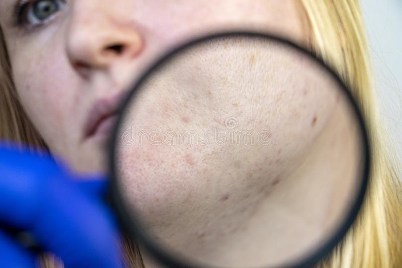 Post-acne under a magnifying glass. Skin with acne scars. Woman at the appointment with a dermatologist royalty free stock photo