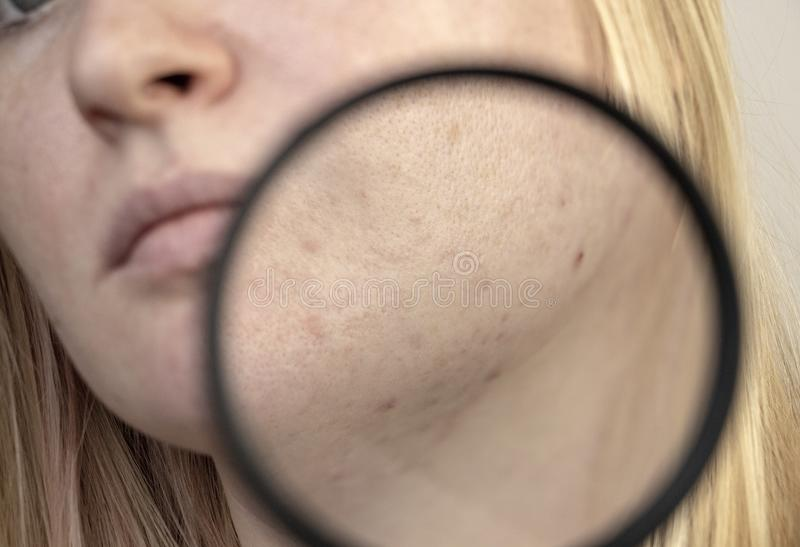 Post-acne under a magnifying glass. Skin with acne scars. Woman at the appointment with a dermatologist stock photos