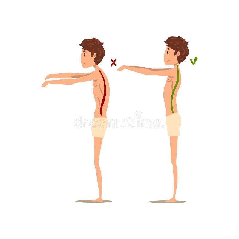 Postura correcta e incorrecta de la espina dorsal, ejemplo del vector de la vista lateral en un fondo blanco stock de ilustración