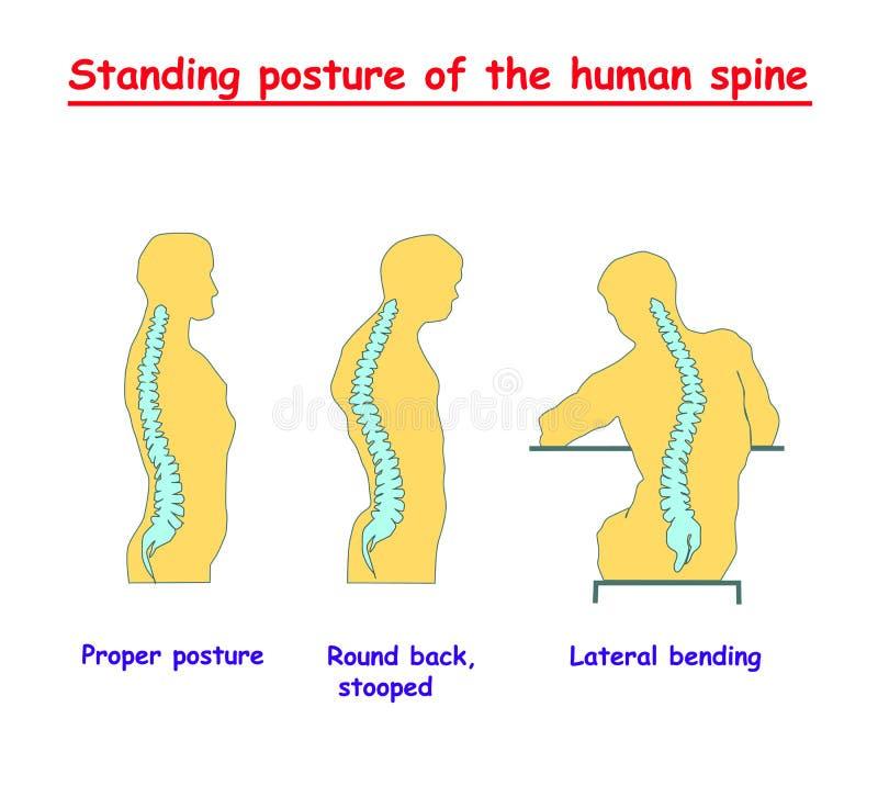 Postura derecha de la espina dorsal humana Defectos de la espina dorsal humana Alineación correcta del cuerpo humano en postura d ilustración del vector