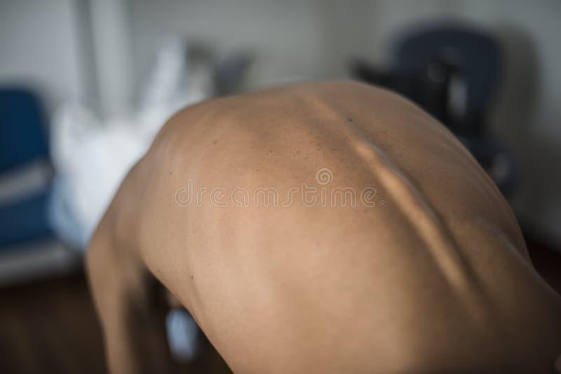 Posture et scoliose photographie stock libre de droits