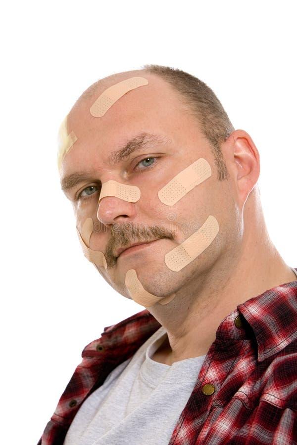 poszkodowany mężczyzna zdjęcie stock