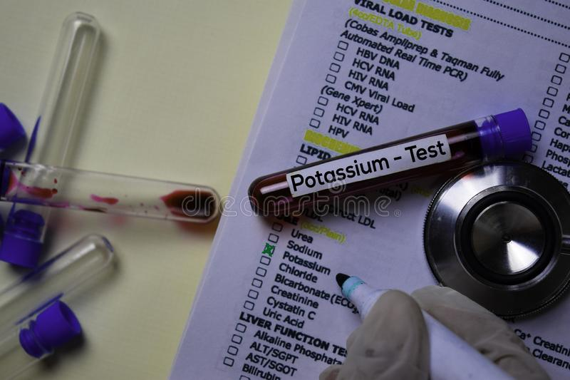Potassium - Test with blood sample. Top view isolated on office desk. Healthcare/Medical concept royalty free stock photos
