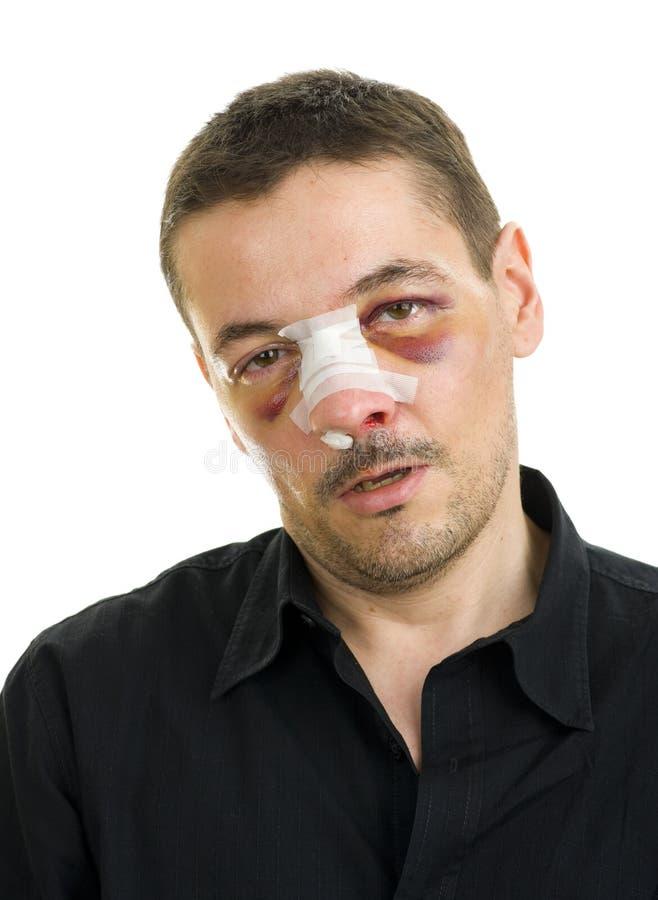 poteau cassé d'exécution de nez images stock