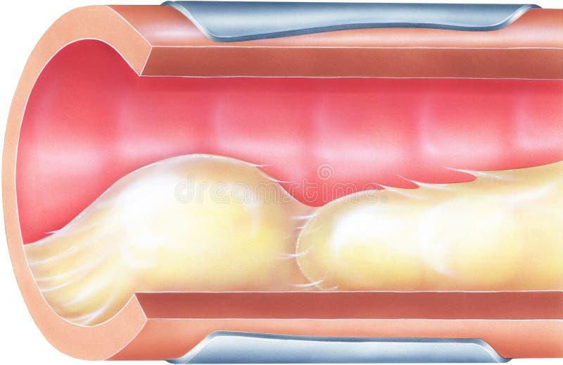 Poumons - mucus bronchique causant l'obstruction des voies respiratoires illustration de vecteur