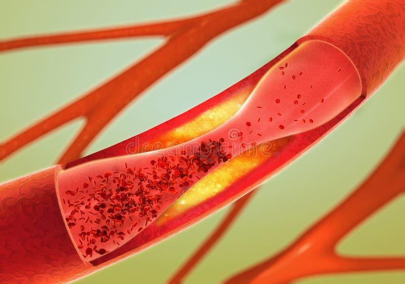 Précipité et rétrécissement des vaisseaux sanguins - artériosclérose illustration de vecteur