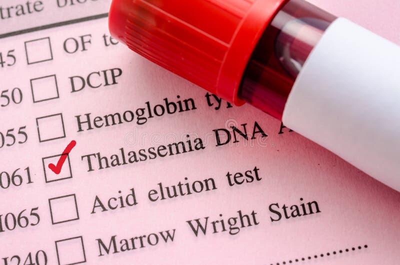 Prélevez le sang dans le tube de sang pour l'essai d'ADN de thalassémie image libre de droits